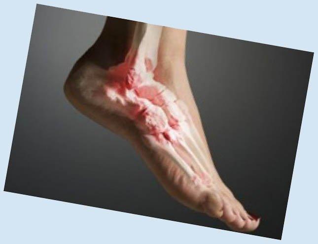 Отдельно стоит выделить артроз большого пальца ноги