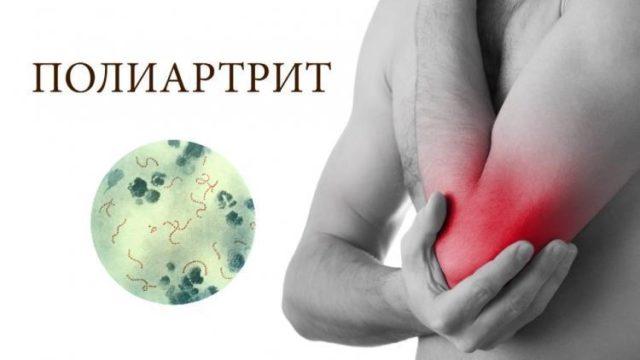 Подвижность в них ограничена из-за болей, повышается температура кожи над суставом, иногда с покраснением