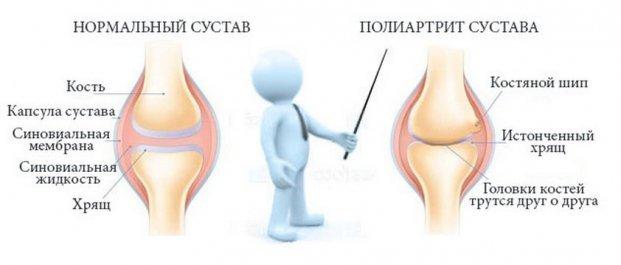 Это может произойти одновременно или в процесс будут постепенно втягиваться все новые суставы