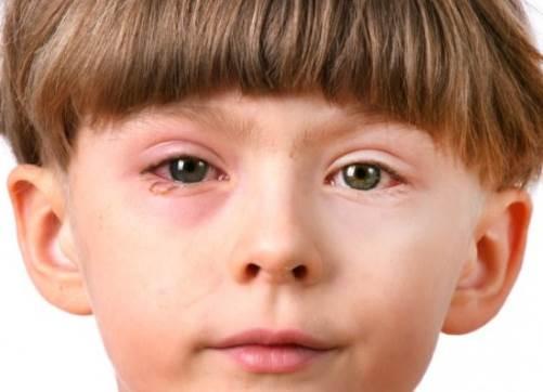 Синдром Рейтера – это уретрит (воспаление мочеиспускательного канала), конъюнктивит (слизистой глаза) и артрит