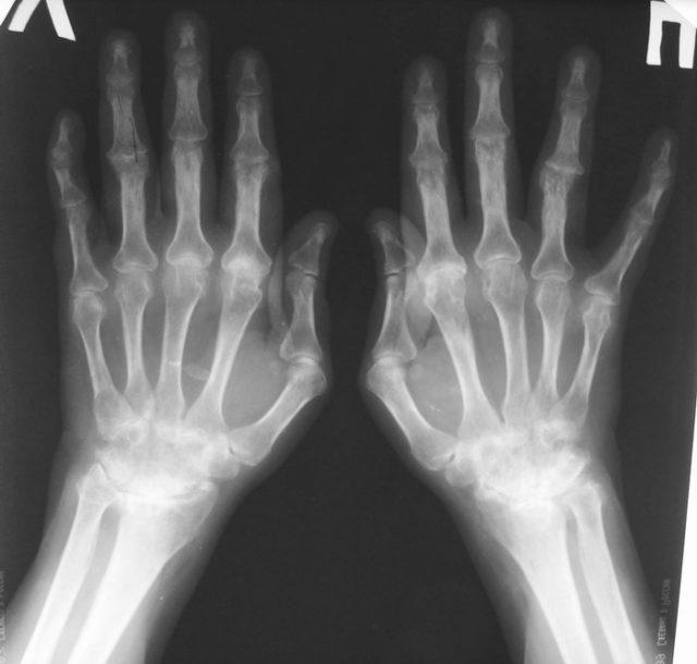 Признаки реактивного артрита – кисты в эпифизах, околосуставной остеопороз, воспаление надкостницы, мест крепления сухожилий