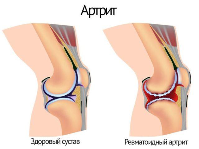 Коленные суставы поражаются в большинстве случаев симметрично