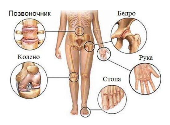 Точные причины, которые запускают патологический процесс, пока неизвестны, заболевание обычно возникает внезапно