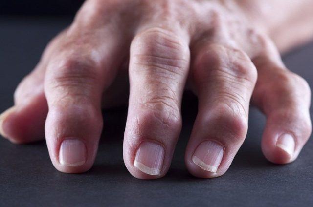 Единственный признак, по которому можно определить развитие ревматоидного артрита – скованность движений, проявляющаяся по утрам
