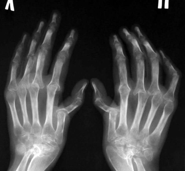 Диагностика артрита включает проведение ряда анализов и исследований
