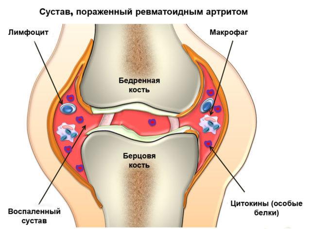 Уже на ранней стадии нарушается функциональность сустава