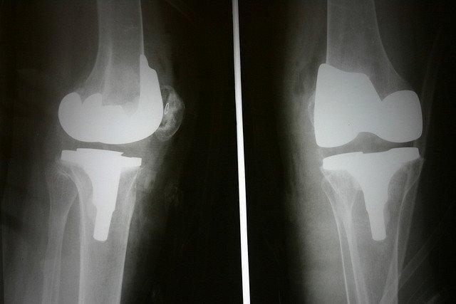 Во время рентгенографии обнаруживается асимметричность пораженных суставов, признаки остеопороза