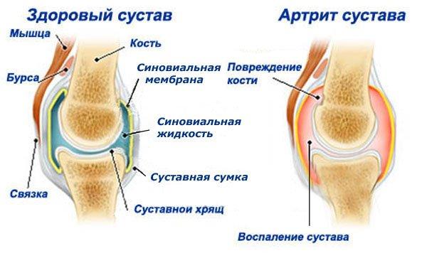 Классические признаки воспаления - это тупые, распирающие боли, увеличение сустава в объеме и сглаживание его контуров (отек)