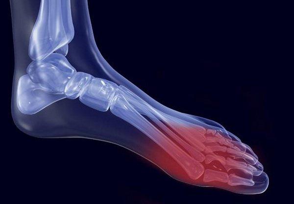 При этом симптомы артрита стопы можно поделить на две основные группы специфические и неспецифические