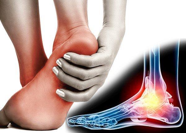 Ранние признаки артрита стопы связаны со скоплением жидкости в полости сустава, в результате чего отмечается поражение окружающих мягких тканей