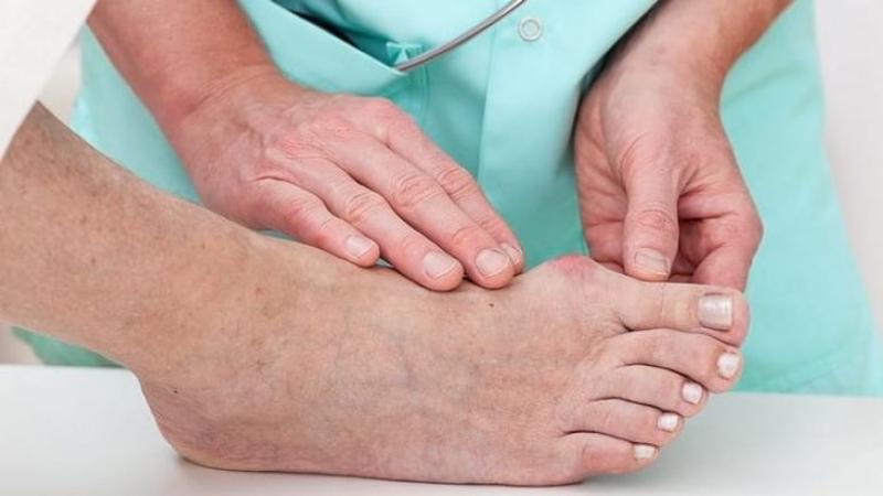 Артрит суставов стопы причины симптомы как лечить недуг