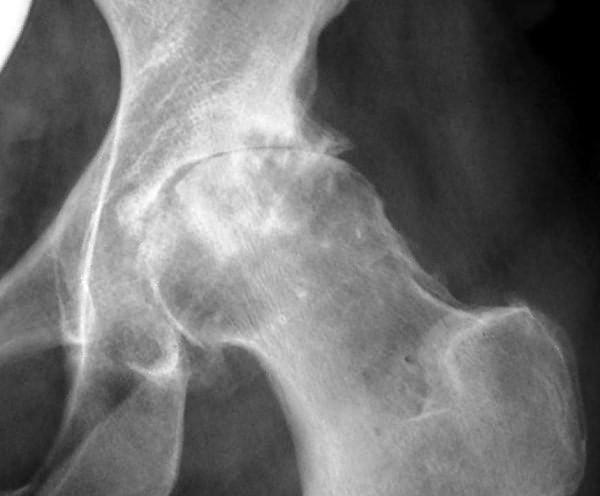 Осевая рентгенограмма