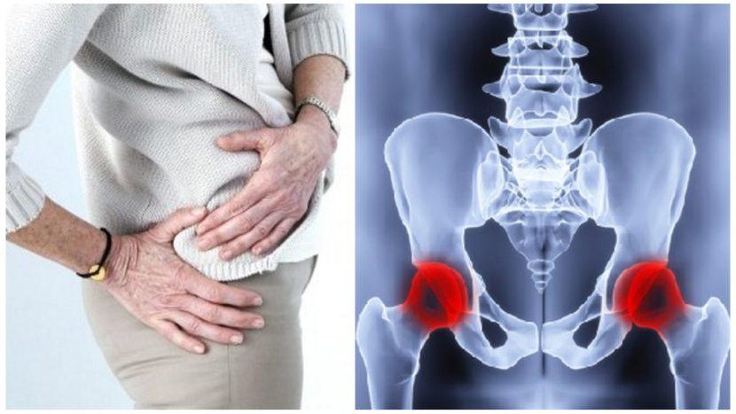 Лекарства при коксартрозе тазобедренного сустава 2 степени