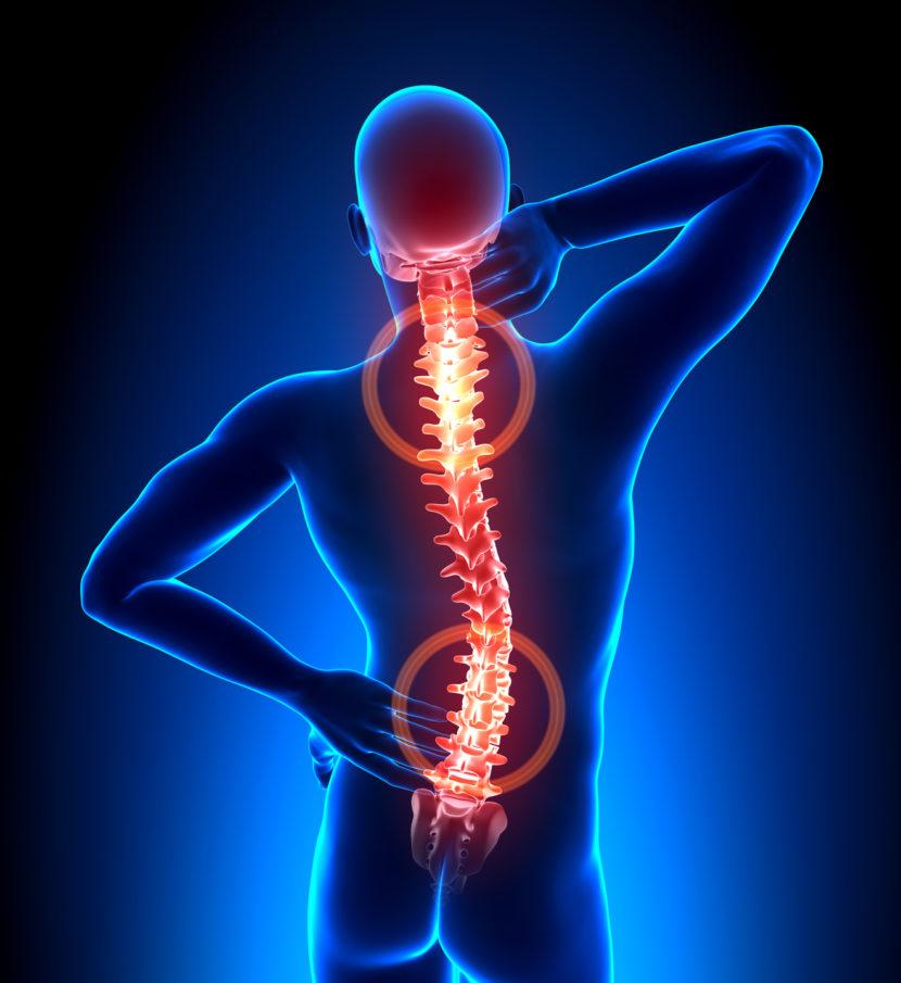 Артроз дугоотростчатых суставов поясничного отдела позвоночника диагностика и лечение