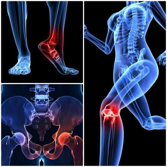 Исходом заболевания является грубая деформация суставов