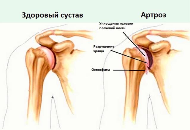 Зачастую артроз осложняется воспалительной реакцией – артритом, приводя к увеличению темпов прогрессии основного заболевания