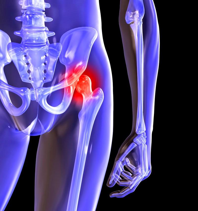 Симптомы и лечение артроза тазобедренного сустава суть заболевания
