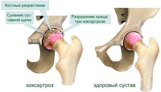 Исследованиями последних лет установлено, что развитие артроза тазобедренного сустава происходит в результате взаимодействия многих факторов, из которых определяющими являются микротравма суставного хряща