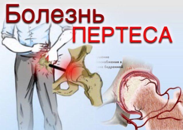 Разрушение суставной поверхности кости, деформация и истончение суставного хряща, а также повреждение остальных внутрисуставных компонентов приводит к развитию артроза