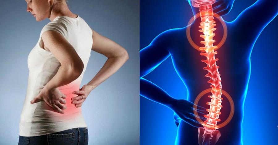 Лечение артроза и остеоартроза рберно-позвоночных сочленений