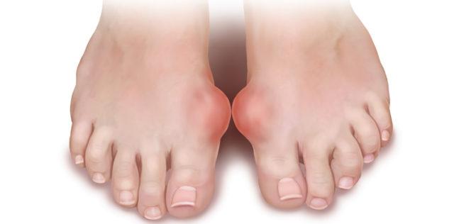 Первые признаки подагры — наличие воспалительного очага в суставе, в 95% случаев наблюдаются в ночное или вечернее время суток