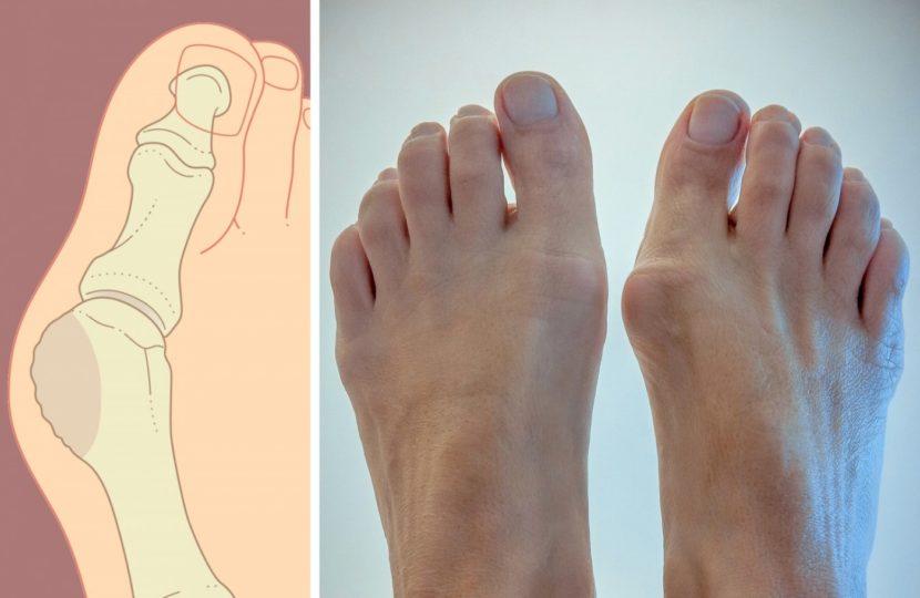 Подагра пальцев ног симптомы и лечение
