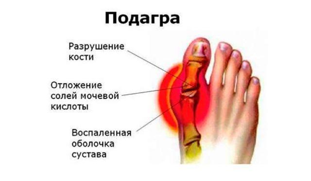 Зачастую подагра проявляется в виде косточек (тофусов) на больших пальцах ног