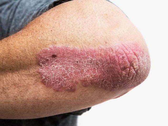 Псориаз стоит одним из первых в ряду рецидивирующих дерматозов, потеря трудоспособности наступает часто