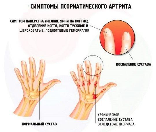 Лечение больных с диагнозом псориаз проходит амбулаторно или в условиях стационара