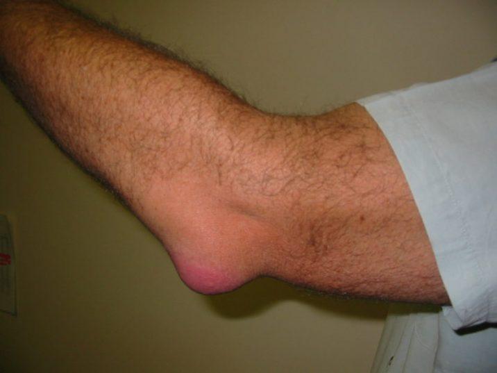 Гнойный бурсит локтевого сустава лечение как справиться с артрозом коленного сустава
