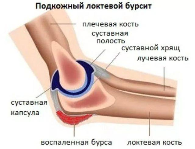 Как известно, локтевой сустав находится в особой капсуле, именуемой по-латыни – бурсой