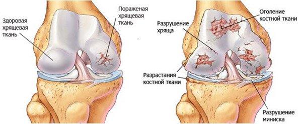 Гонартроз характеризуется разрушением хрящевой ткани