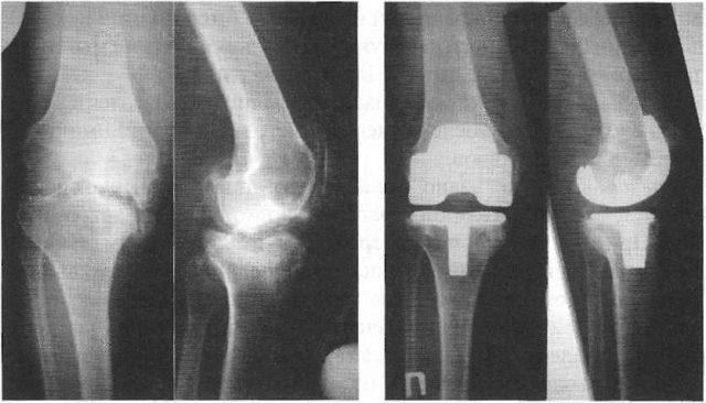 Тут можно увидеть степень сужения суставной щели, повреждение хряща и кости, наличие скопления солевых отложений, остеофитов
