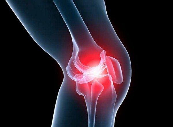 Гонартроз 2 степени сопровождается болевыми ощущениями после нагрузки сустава