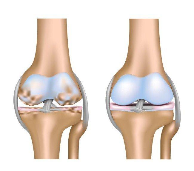 Зачастую патология не является воспалительной, однако трение костей друг о друга может спровоцировать этот процесс