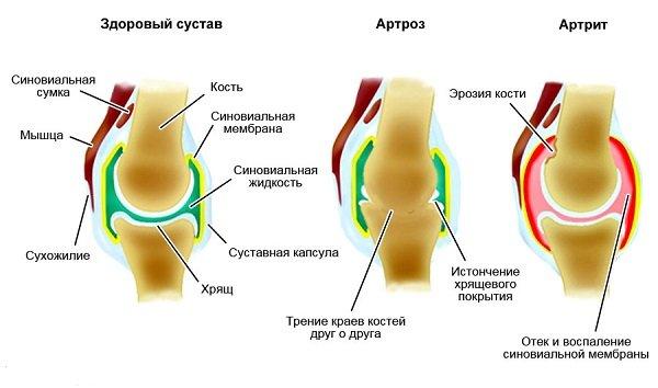 Дальше происходит разрушение связочной, синовиальной, и даже костной тканей