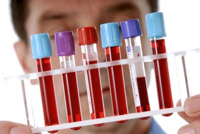 Анализ крови на концентрацию иммуноглобулинов