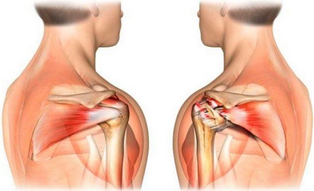 Регулярное использование местных средств при лечении артроза рекомендуется всеми ведущими специалистами в области заболеваний суставов