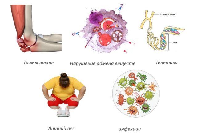 Последние возникают в результате часто повторяющихся физических нагрузок, изменения структуры локтевого сустава после травм