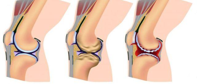 2-ая степень. Появляются постоянные боли в локте, особенно ночью, нарушается подвижность руки, происходит сужение суставной щели в два раза от нормы