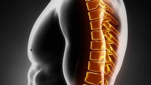 С прогрессированием болезни на костной ткани образуются остеофиты и шпоры