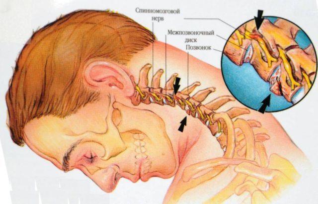При остеоартрозе в запущенном состоянии у больного могут появляться мушки перед глазами, падает зрение, кружится голова