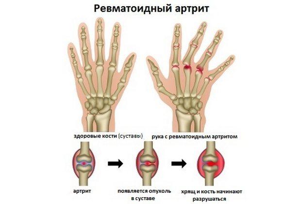Причины, вызывающие артрит, разнообразны