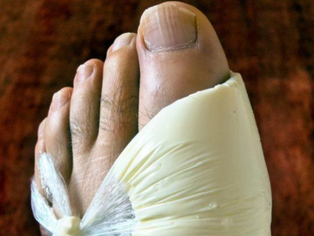 Приступ подагры – это воспаление сустава, сопровождающееся очень сильной болью