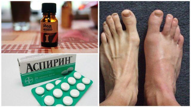 Хороший клинический эффект в борьбе с проявлениями подагры проявляет йод с аспирином