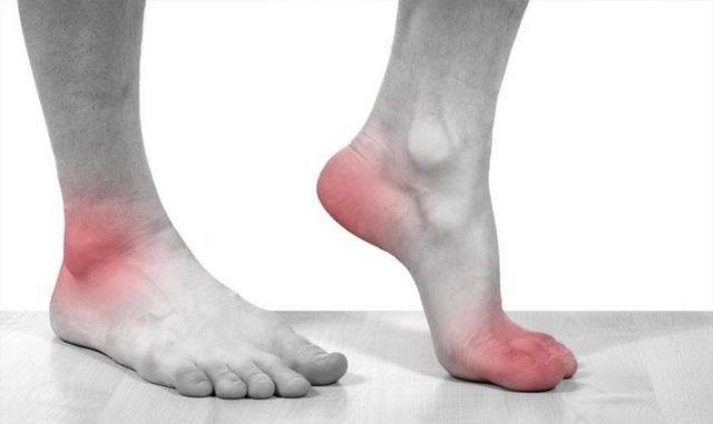 Главный симптом подагры — боль в суставах, но это не столько болезнь суставов, сколько болезнь обмена веществ