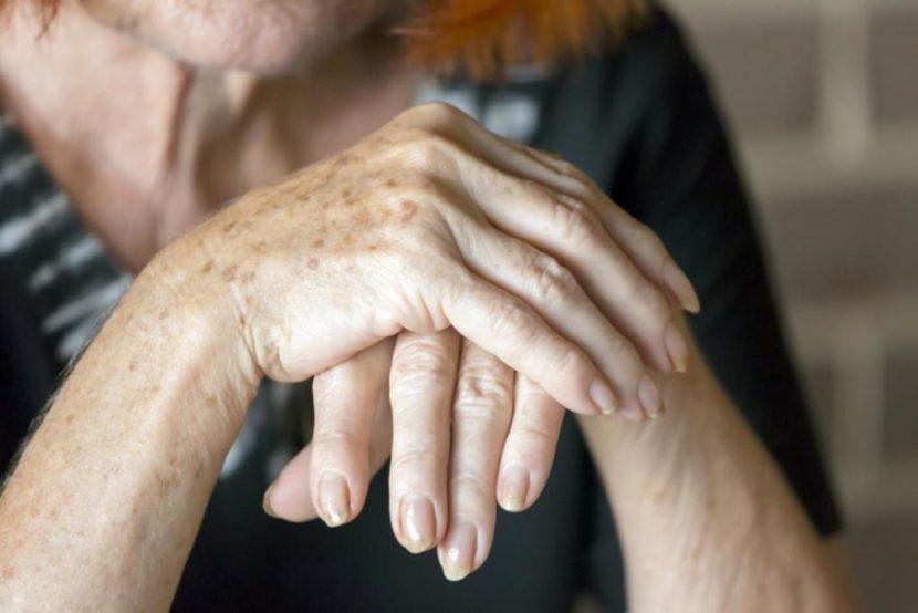Полиартрит: что это такое, симптомы, признаки и лечение