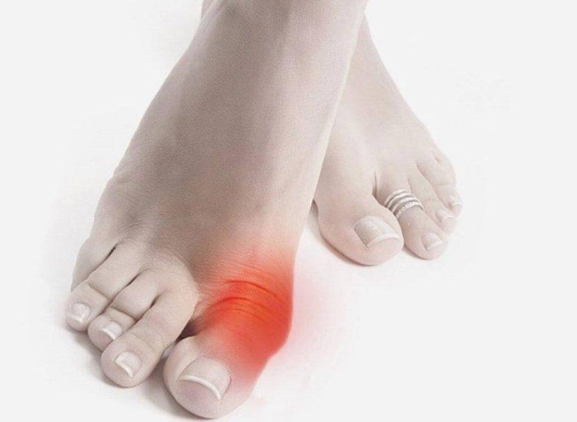 Отличия псевдоподагры от подагры — Лечение артроза и артрита, лечение подагры