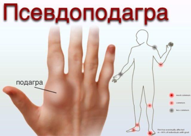 Как правило, это заболевание развивается из-за отложения солей пирофосфата кальция в суставах