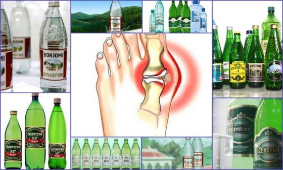 Только щелочные минералки вместе с медикаментозной терапией способны улучшить состояние больного и перевести подагру в стадию ремиссии
